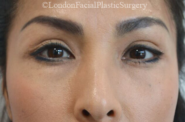 Upper Eyelid (Blepharoplasty) Surgery - Female face, before treatment photo, front view