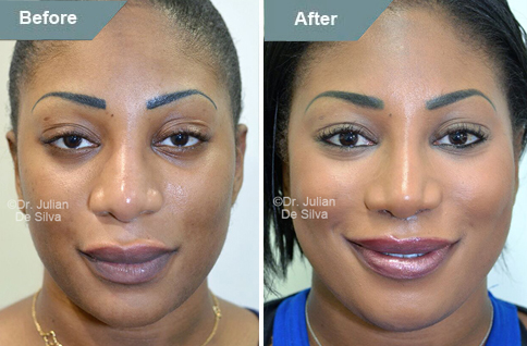 Woman's face, Before and After Lip Lift Treatment, front view