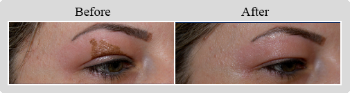 View Photos: Non-Surgical Blepharoplasty