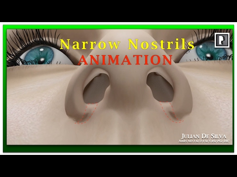 Watch Video: Rhinoplasty Animation - How can Wide Nostrils be Narrowed?