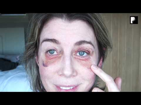 Watch Video: Blepharoplasty Video Diary - 2 Weeks After Surgery (10 of 15)