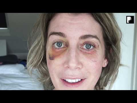 Watch Video: Blepharoplasty Video Diary - Day 16 After Surgery (11 of 15)