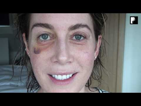 Watch Video: Blepharoplasty Video Diary - Day 18 After Surgery (12 of 15)