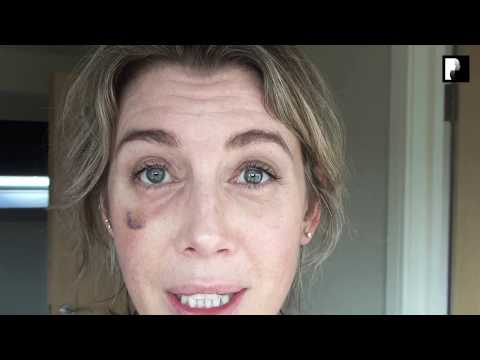 Watch Video: Blepharoplasty Video Diary - 3 Weeks After Surgery (13 of 15)