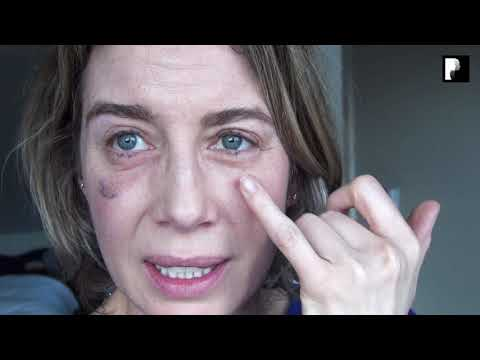 Watch Video: Blepharoplasty Video Diary - Day 26 After Surgery (14 of 15)