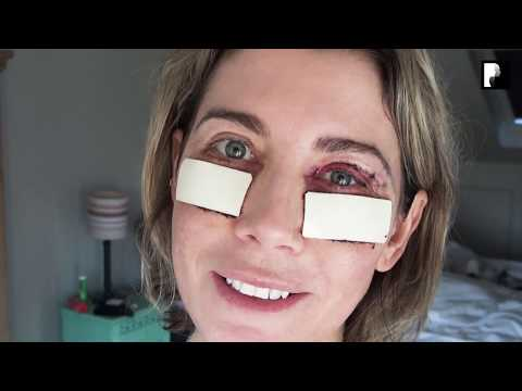 Watch Video: Blepharoplasty Video Diary - Day 2 After Surgery (2 of 15)