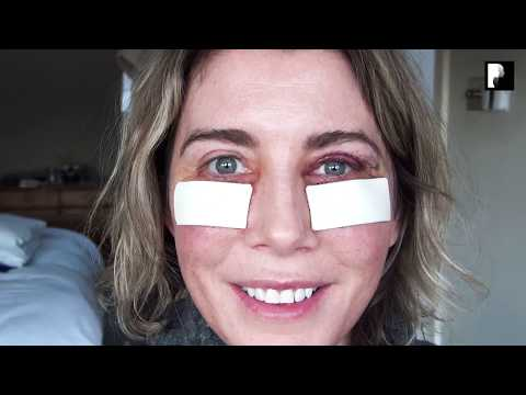 Watch Video: Blepharoplasty Video Diary - Day 3 After Surgery (3 of 15)