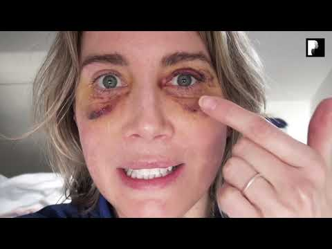 Watch Video: Blepharoplasty Video Diary - Day 5 After Surgery (4 of 15)