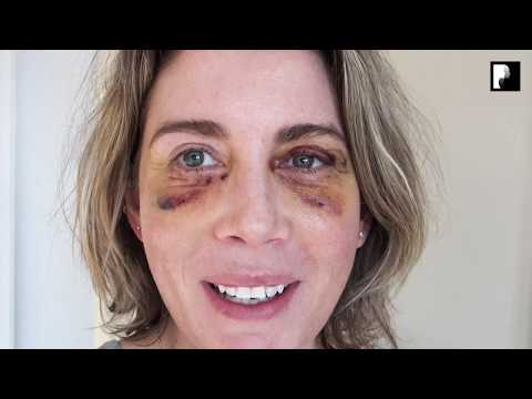 Watch Video: Blepharoplasty Video Diary - Day 6 After Surgery (5 of 15)
