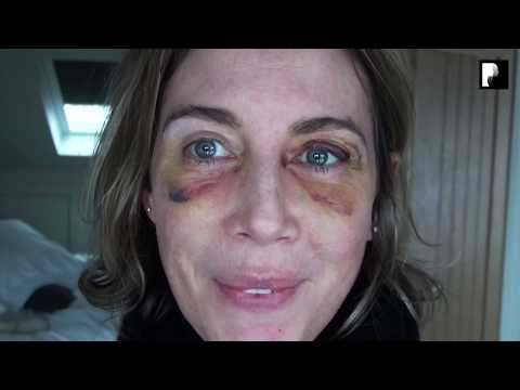 Watch Video: Blepharoplasty Video Diary - Day 7 After Surgery (6 of 15)