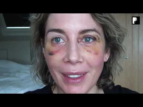 Watch Video: Blepharoplasty Video Diary - Day 8 After Surgery (7 of 15)
