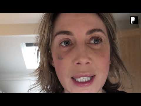Watch Video: Blepharoplasty Video Diary - Day 10 After Surgery (8 of 15)