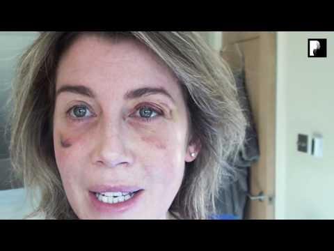 Watch Video: Blepharoplasty Video Diary - Day 12 After Surgery (9 of 15)