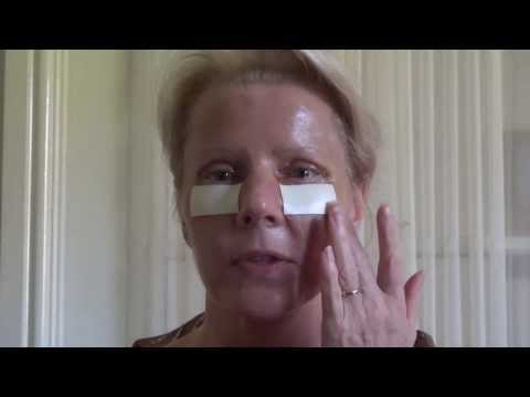 Watch Video: Blepharoplasty Eyelid Lift Diary Day 5 After Surgery