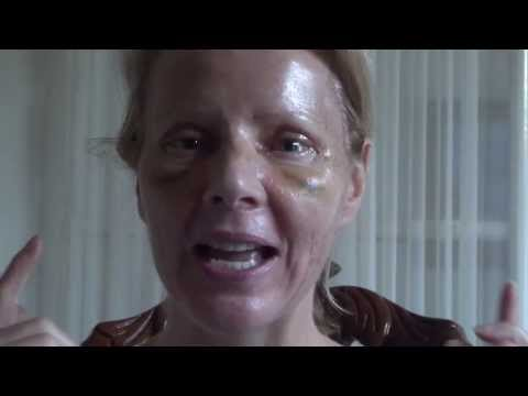 Watch Video: Blepharoplasty Eyelid Lift Diary Day 6 After Surgery