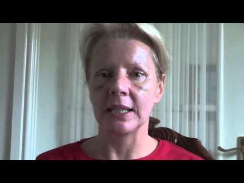 Watch Video: Blepharoplasty Eyelid Lift Diary Day 8 After Surgery
