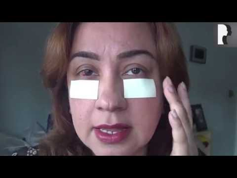 Watch Video: Blepharoplasty Video Diary: Day 4 After Eyelid Surgery & Recovery Process