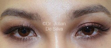 Eyelid Surgery (Blepharoplasty) Before 83