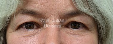 Eyelid Surgery (Blepharoplasty) Before 85