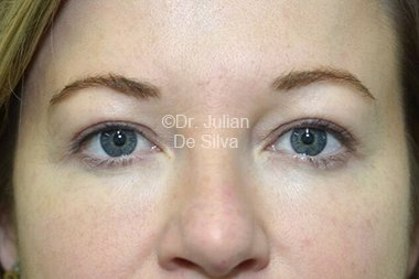 Eyelid Surgery (Blepharoplasty) After 88