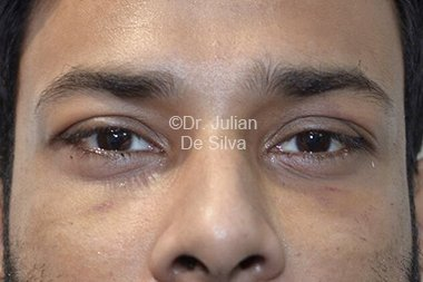 Eyelid Surgery (Blepharoplasty) After 89