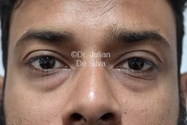 Eyelid Surgery (Blepharoplasty) Before 89
