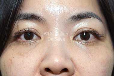 Eyelid Surgery (Blepharoplasty) After 91