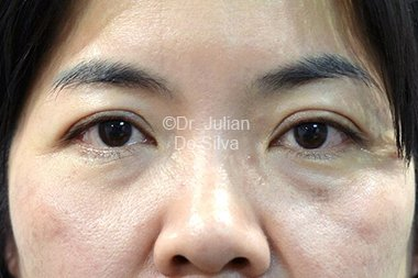 Eyelid Surgery (Blepharoplasty) Before 91