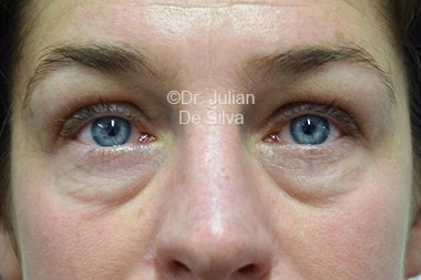Eyelid Surgery (Blepharoplasty) Before 93