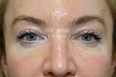 Eyelid Surgery (Blepharoplasty) After 95