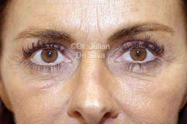 Eyelid Surgery (Blepharoplasty) After 96