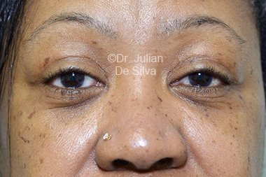 Eyelid Surgery (Blepharoplasty) After 97