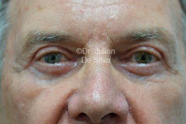 Eyelid Surgery (Blepharoplasty) After 99