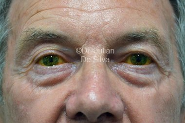 Eyelid Surgery (Blepharoplasty) Before 99