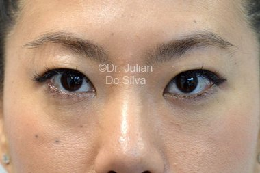 Eyelid Surgery (Blepharoplasty) Before 101