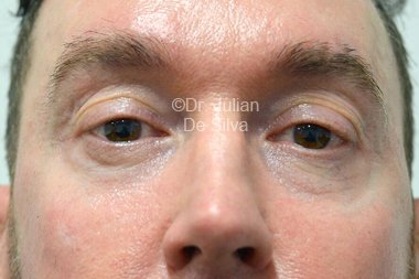 Eyelid Surgery (Blepharoplasty) Before 102