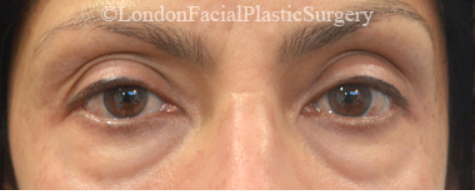 Eyelid Surgery (Blepharoplasty) Before 34