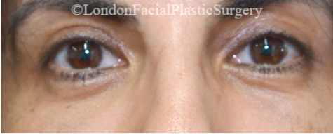 Eyelid Surgery (Blepharoplasty) After 35