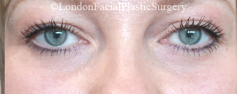Eyelid Surgery (Blepharoplasty) After 37