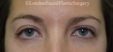 Eyelid Surgery (Blepharoplasty) After 38