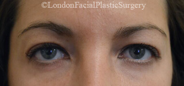 Eyelid Surgery (Blepharoplasty) Before 38