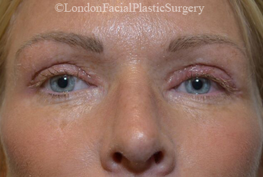 Eyelid Surgery (Blepharoplasty) After 39
