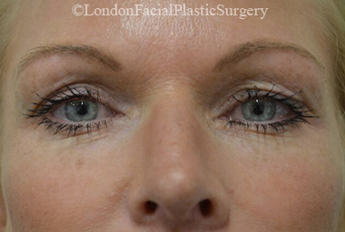 Eyelid Surgery (Blepharoplasty) Before 39