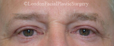 Eyelid Surgery (Blepharoplasty) After 40