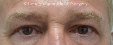 Eyelid Surgery (Blepharoplasty) Before 40