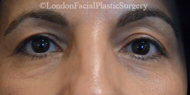 Eyelid Surgery (Blepharoplasty) Before 42