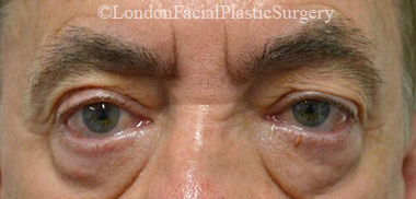 Eyelid Surgery (Blepharoplasty) Before 44