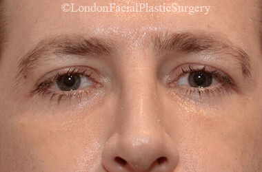 Eyelid Surgery (Blepharoplasty) After 46