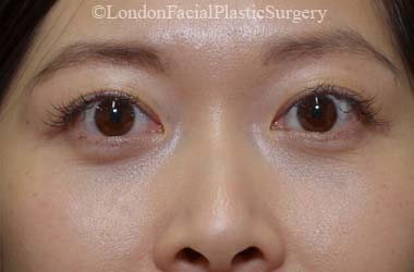 Eyelid Surgery (Blepharoplasty) After 47