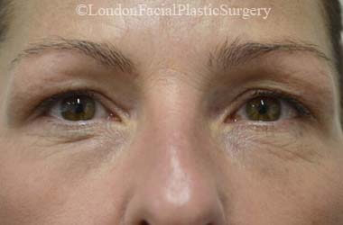 Eyelid Surgery (Blepharoplasty) Before 48